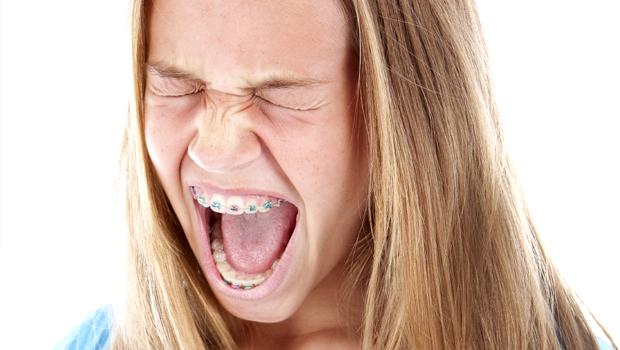 Do Braces Hurt?  And Tylenol vs.Motrin…