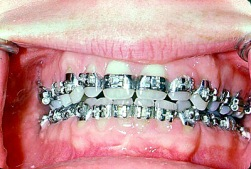 braces banded all teeth 6/29/00 Hand Out photo FEATURES