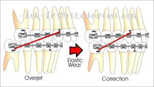 Correction-with-Elastic-Wear2