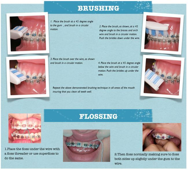 Good Oral Hygiene:  brushing & flossing teeth during braces…